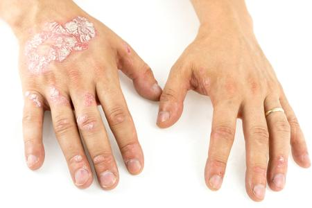 Marli Psoriasis before and after hands