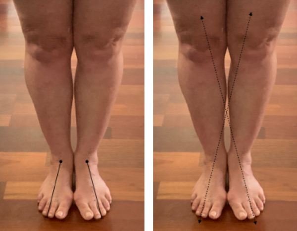 Feet together with bunions showing midlines of feet