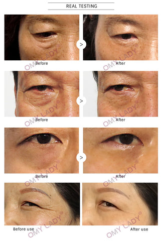 Eye Bag Removal - OMYLADY US