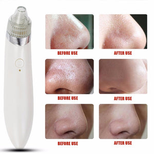 Pro Ultrasonic Vibration Electric Blackhead Vacuum Suction Remover Vacuum Face Pore Spot Cleaner Beauty Facial Skin Care Tool