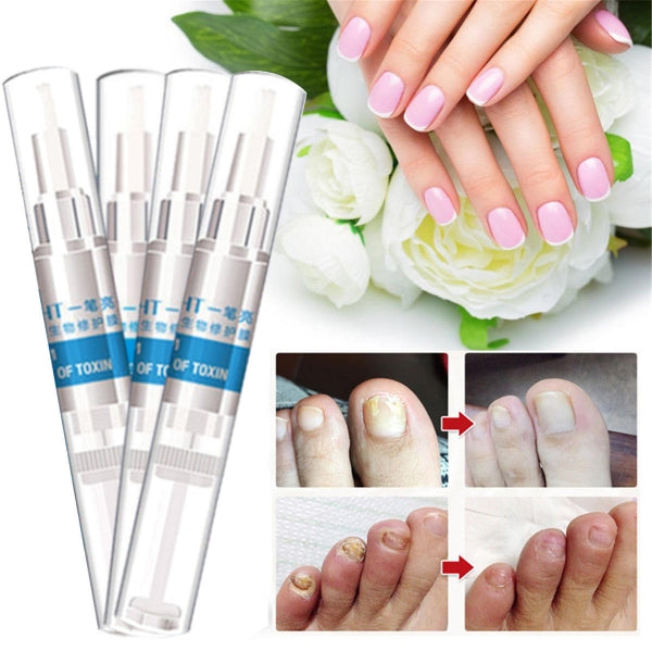 4pcs 3ml Nail Treatment Pen Infection Nail Bright Pencil Fungal Treatment Anti Fungus Biological Repair Restores Healthy Nails