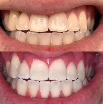 Before & After Images