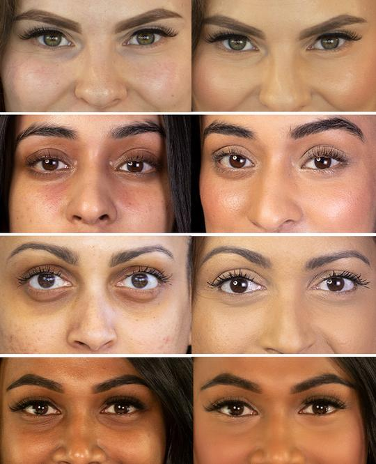 Comparison before and after applying Vasanti Liquid VO2 Dark Circle Eraser - Collage half face eye area