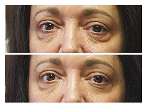 FaceLift™ Instantly Ageless Anti-Wrinkles Serum