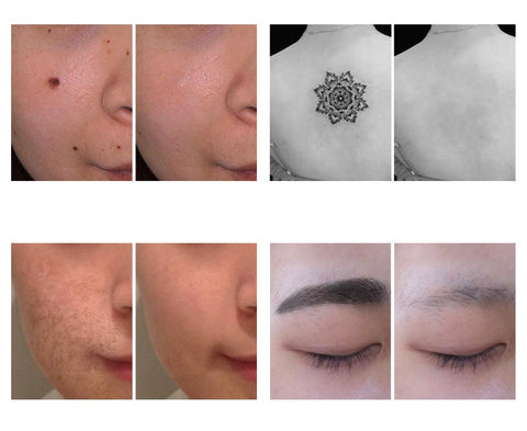 Laser (Acne, Mole, Warts, Freckles, Tattoo) Removal Device