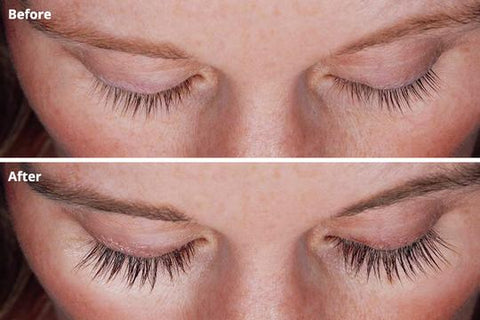 MiracLash Eyebrows & Eyelash Growth Treatment Serum