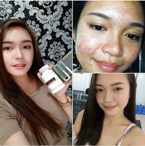 luxxe white enhance glutathione user