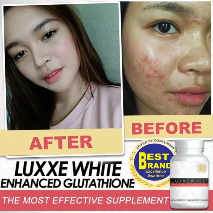 Buy Authentic Luxxe White® Enhanced Glutathione - Luxxe Caps