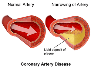 Coronary Artery Disease and Oxidative Stress