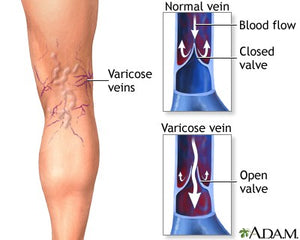 Varicose Veins and Oxidative Stress