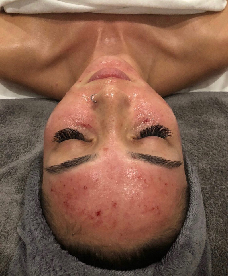 Microneedling - Collagen Induction Therapy