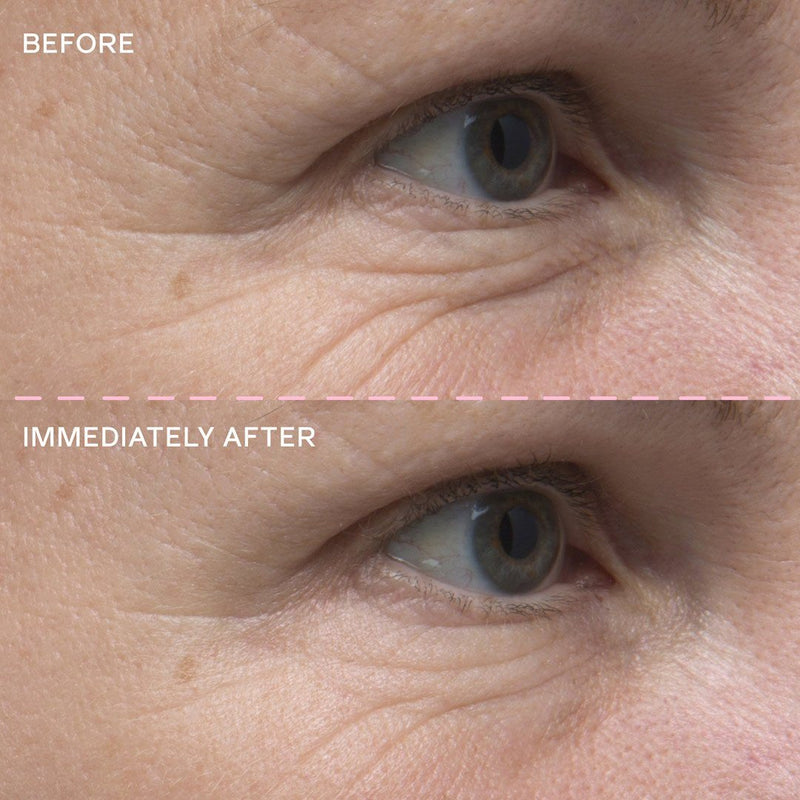 Eye Cream Before and After photo