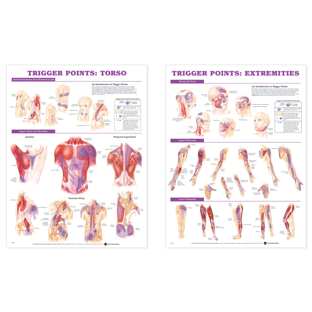 Trigger Point Chart, Set of 2
