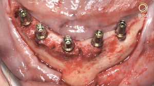 BBA Video Tutorial 6.4 -<br>Fixed restoration in the edentulous mandible