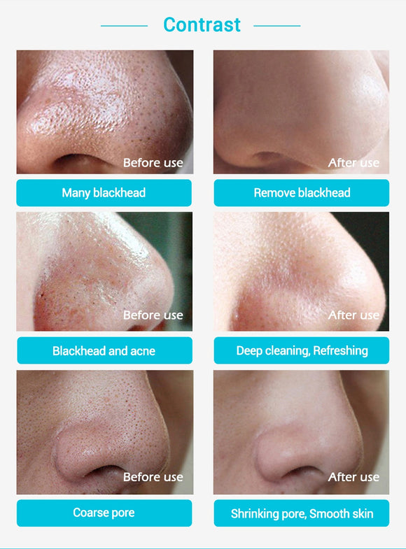 Blackhead Remover Nose Mask
