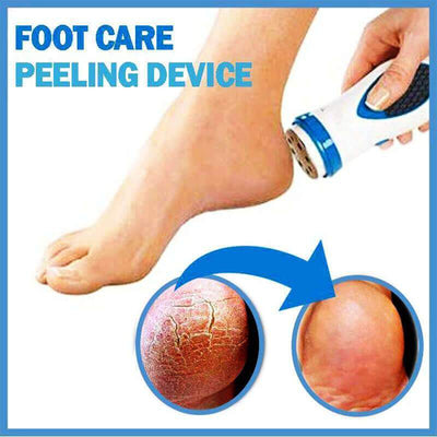 【50% OFF+FREE SHIPPING】FOOT CALLUS REMOVER - IlifeGadgets