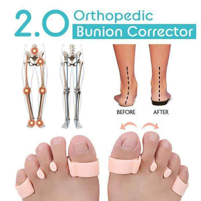 【buy 2 get extra 10% off+FREE SHIPPING】Orthopedic Bunion Corrector 2.0 - IlifeGadgets