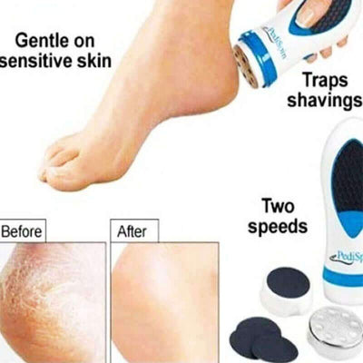【50% OFF+FREE SHIPPING】FOOT CALLUS REMOVER - Pointsmarts