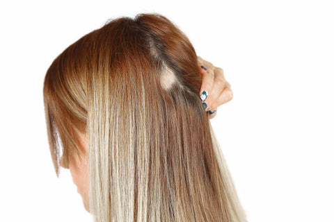 woman pulling hair back to reveal hair loss patches