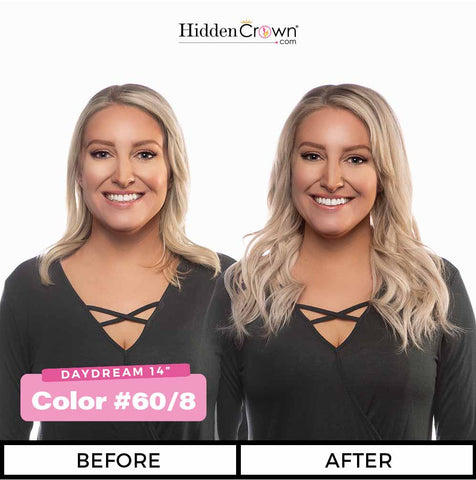 Hidden crown hair before after