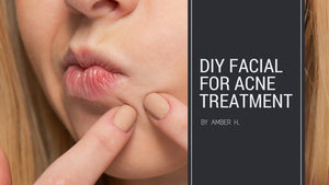 DIY at home Acne Facial Treatment