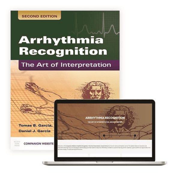 Paramedic Shop PSG Learning Textbooks Arrhythmia Recognition: The Art of Interpretation Second Edition
