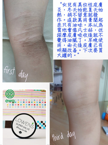 Lowen's all purpose balm for eczema skin condition review.