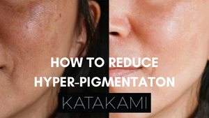 How to reduce hyper-pigmentation: skincare ingredients to look out for