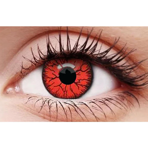 Infected Red Contact Lenses