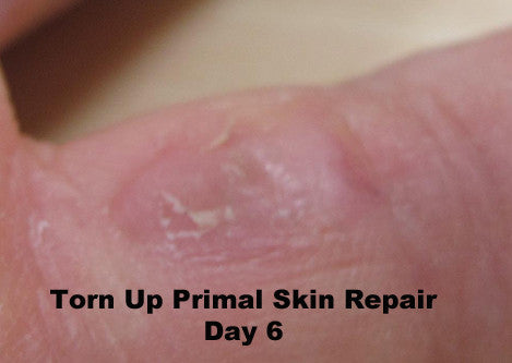 Skin Repair for cuts, cold sores, bites and lacerations