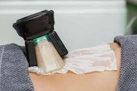 Cryolipo One Hour