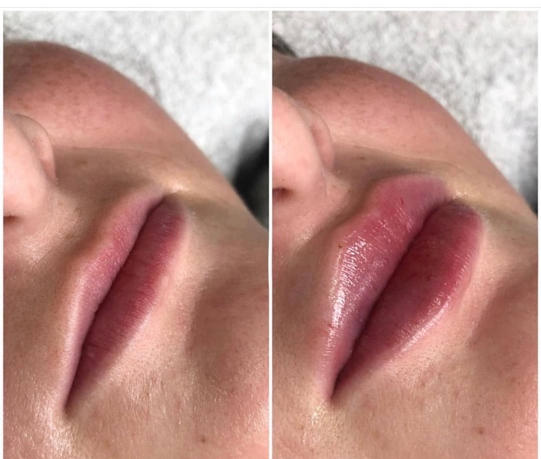 LIP FILLER 1 ML