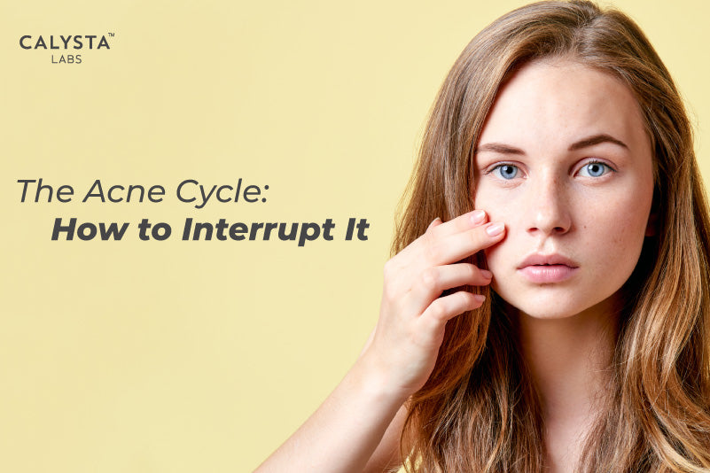 The Acne Cycle: How to Interrupt It
