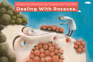Roses Are Red and My Cheeks are Flushed: Dealing With Rosacea