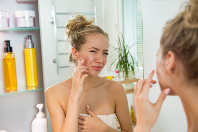 How to Know When Your Skincare Products Are Too Harsh