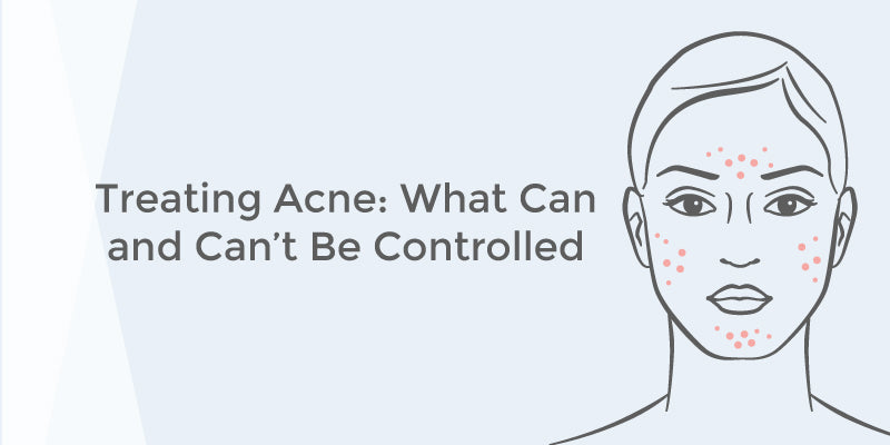 Treating Acne: What Can and Can't Be Controlled