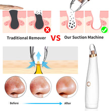 Load image into Gallery viewer, BLACKHEAD REMOVER Blackhead Remover - Diamond Microdermabrasion Skin Peeling - EK CHIC