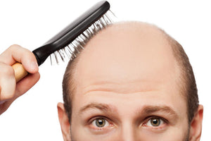 WHAT ACTUALLY CAUSES HAIR LOSS: HAIR LOSS MYTHS DEBUNKED