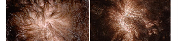 DHT AND HAIR LOSS IN WOMEN