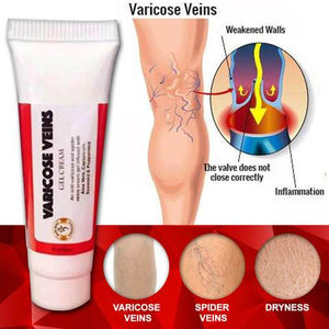 VARICOSE VEINS GEL CREAM 10ML