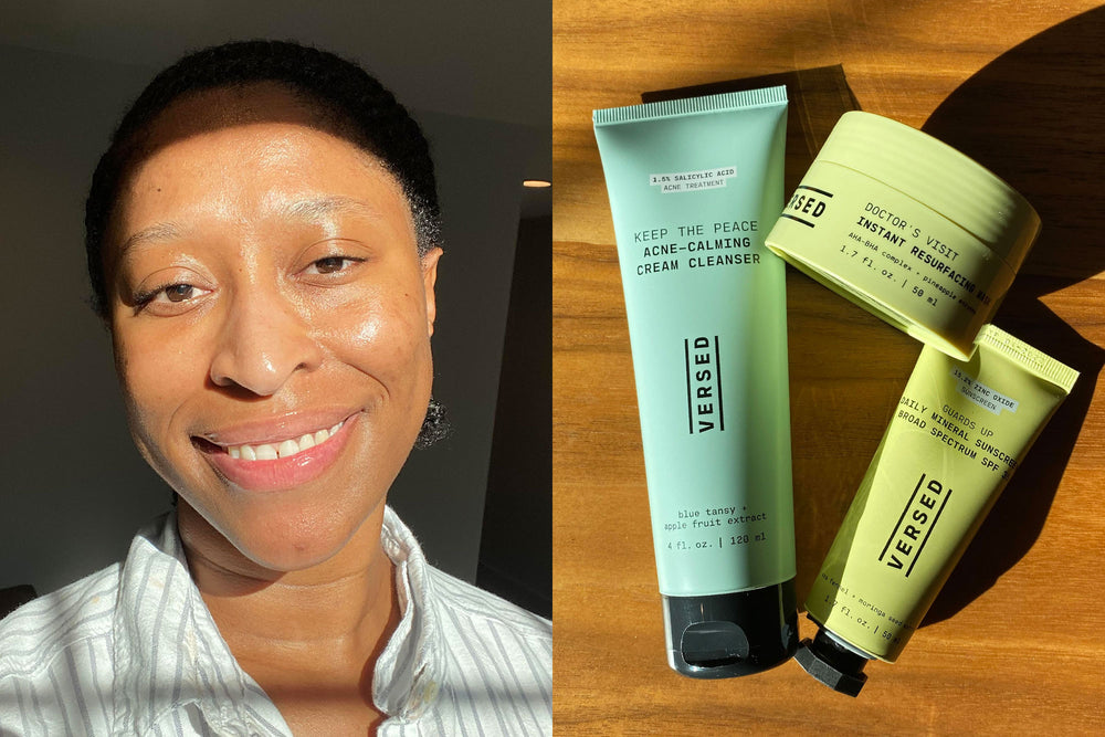 As a Black Woman, I'm More Prone to Dark Spots. Here's What Helped Me Heal Them