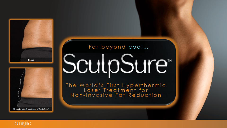 SculpSure® - In-Office Body Contouring (1 Treatment)