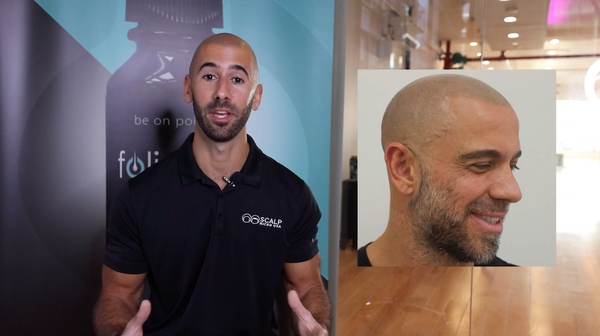 Matching Your Hair Color with Scalp Micropigmentation