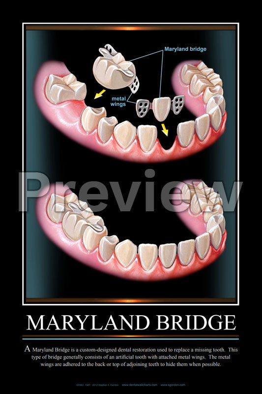 Maryland Bridge Wall Chart