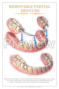 Removable Partial Denture Wall Chart