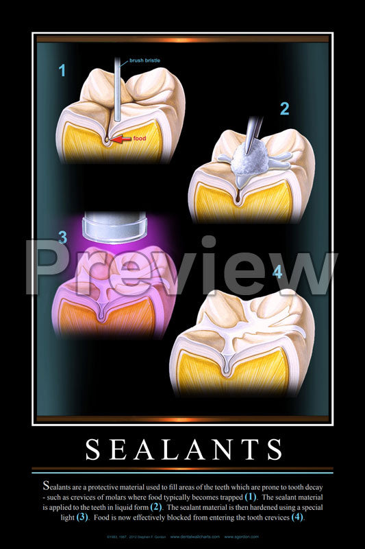 Sealants Wall Chart
