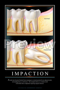 Impaction Wall Chart