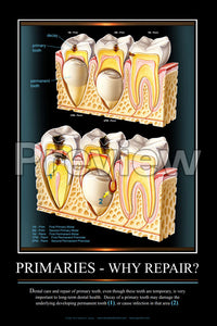 Primaries - Why Repair? Wall Chart