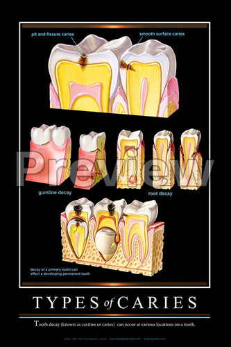 Types of Caries Wall Chart