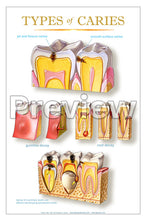 Load image into Gallery viewer, Types of Caries Wall Chart
